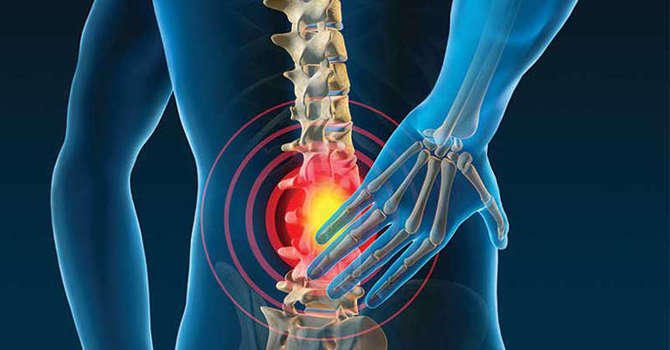 Chronic Low Back Pain Case Study